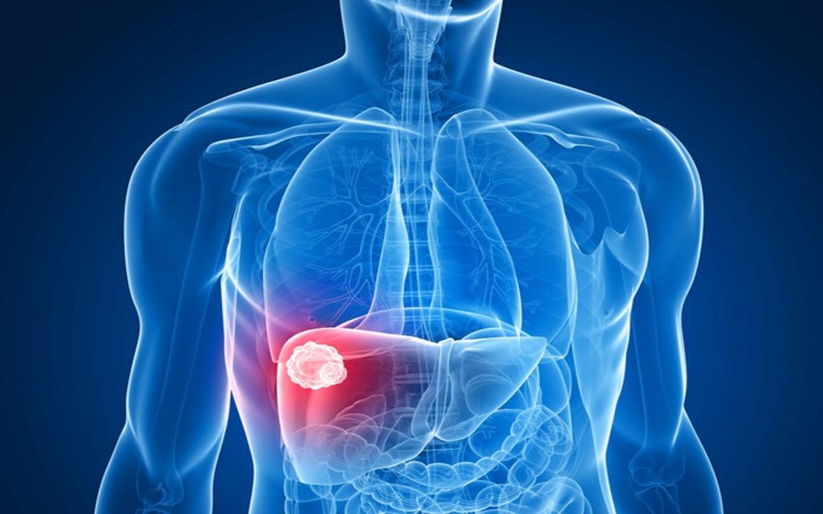 Ung thư gan: Bánh trung thu có thể chứa một phụ gia thực phẩm độc hại đã bị cấm gây ảnh hưởng xấu đến sức khỏe, đặc biệt là gan và thận.
