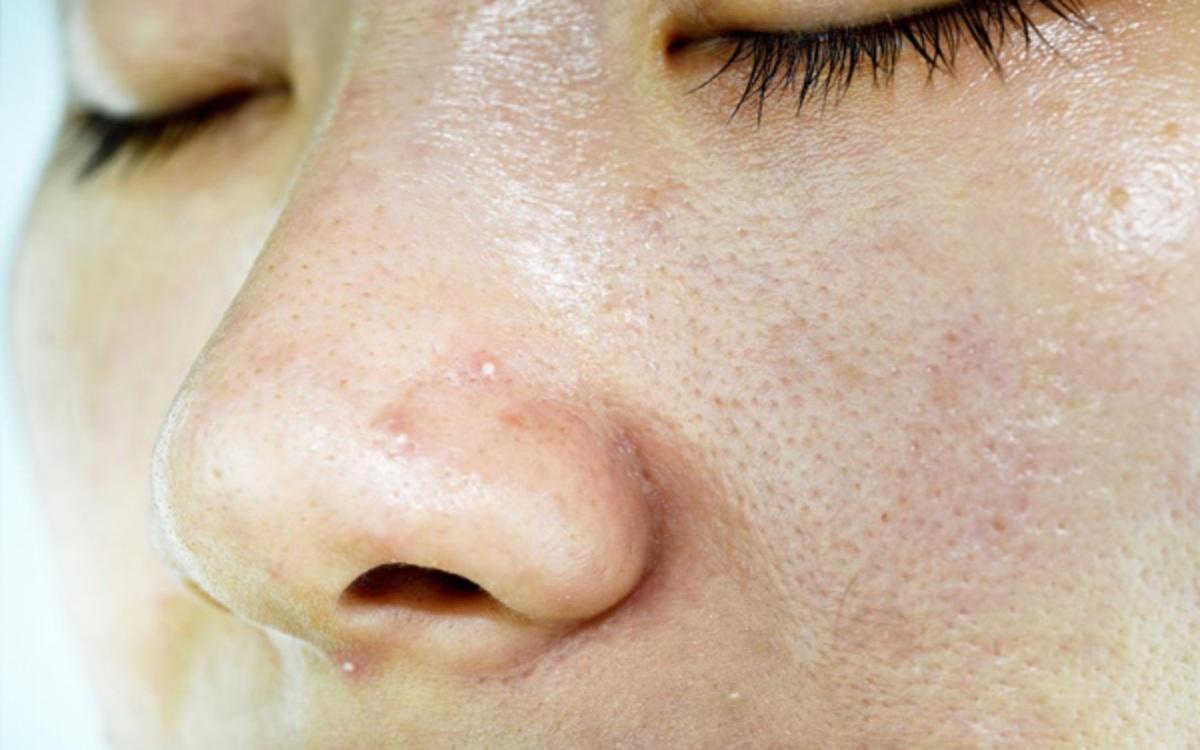 Thiếu vitamin B2 làmmắt bị kích ứng, da nhiều dầu hơn, xuất hiện mẩn đỏ và viêm chân lông.
