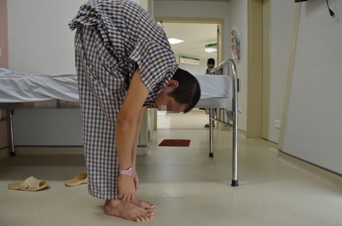 Căn bệnh gù rất nặng do viêm cột sống dính khớp, khiến thân hình anh N.V.T (36 tuổi, Hà Nội) gãy gập như một con tôm. (Ảnh: BVCC)