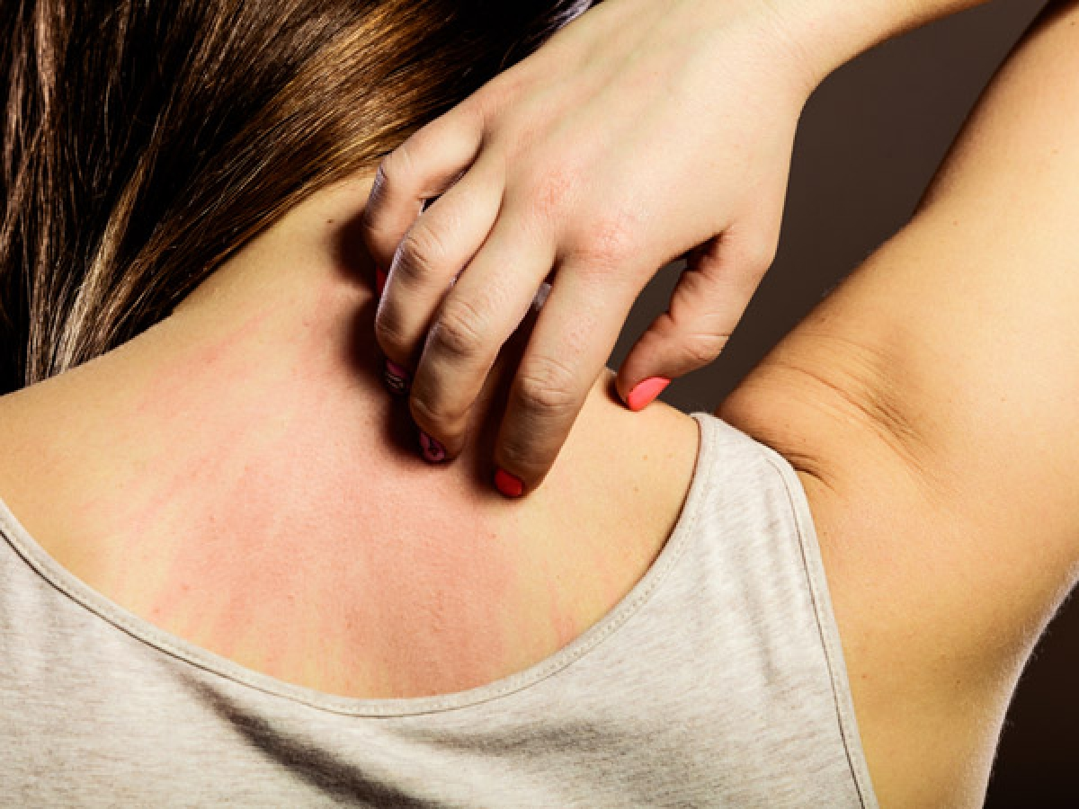 Viêm da: Kháng insulin có thể gây bệnh gai đen, một bệnh lý về da đặc trưng bởi hiện tượng các nếp gấp da dày lên, đặc biệt là khu vực cổ và háng. Sự tích tụ mồ hôi ở các khu vực này có thể gây ngứa ngáy và dẫn đến nhiễm khuẩn da.
