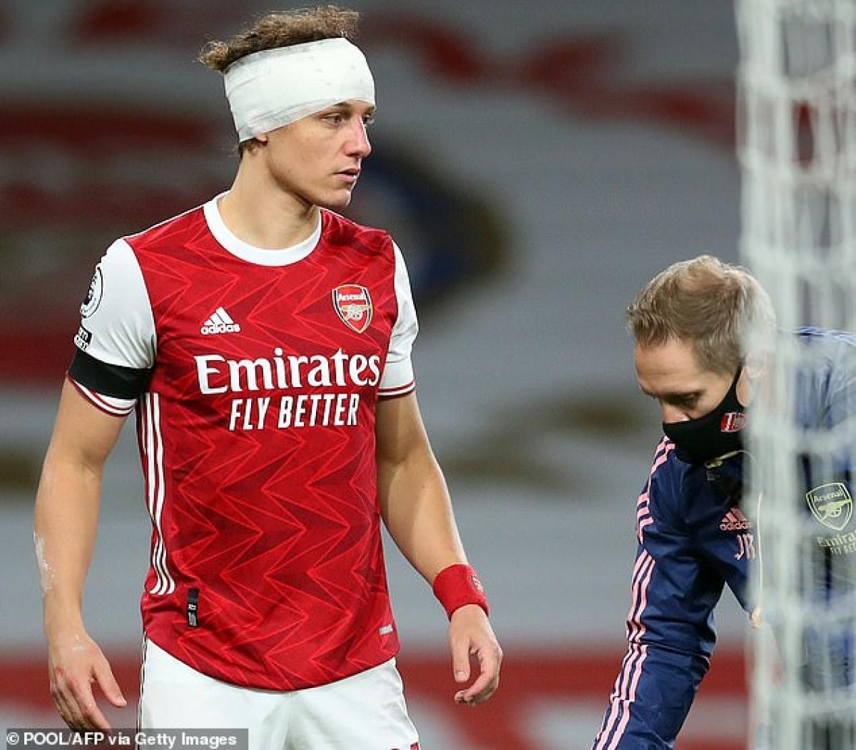 Trung vệ Arsenal tiếp tục thi đấu hết hiệp 1 với chiếc băng trên đầu trước khi rời sân nhường chỗ cho Rob Holding sau giờ nghỉ.