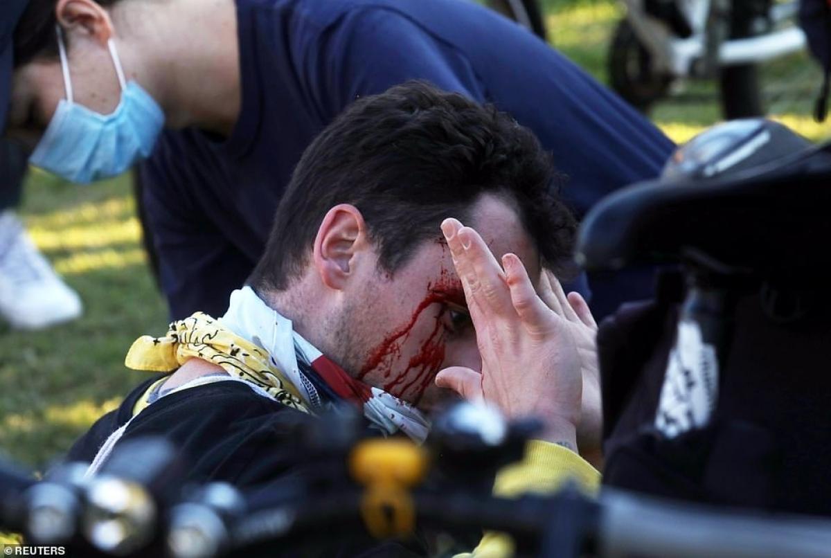 Một người biểu tình bị thương trong khi xô xát./.