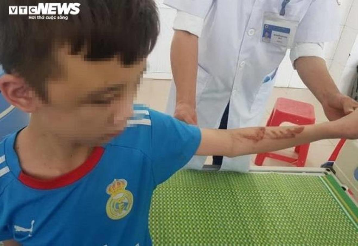 Cánh tay của Duy chằng chịt vết thương do bị chủ quán đánh.