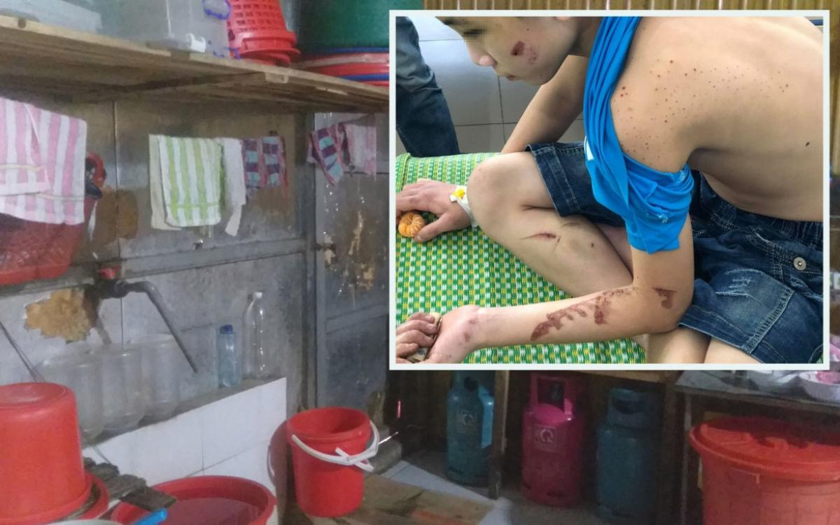 Nạn nhân trong vụ ngược đãi, tra tấn trẻ em ở quán bánh xèo tỉnh Bắc Ninh.