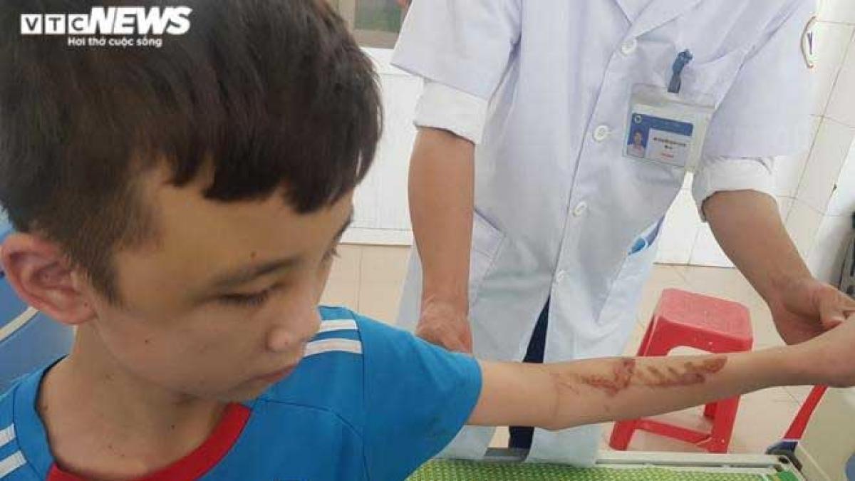 Cậu bé 14 tuổi bị chủ quán bánh xèo bạo hành với chi chít vết thương trên người, mặt bầm tím. (Ảnh VTC News)