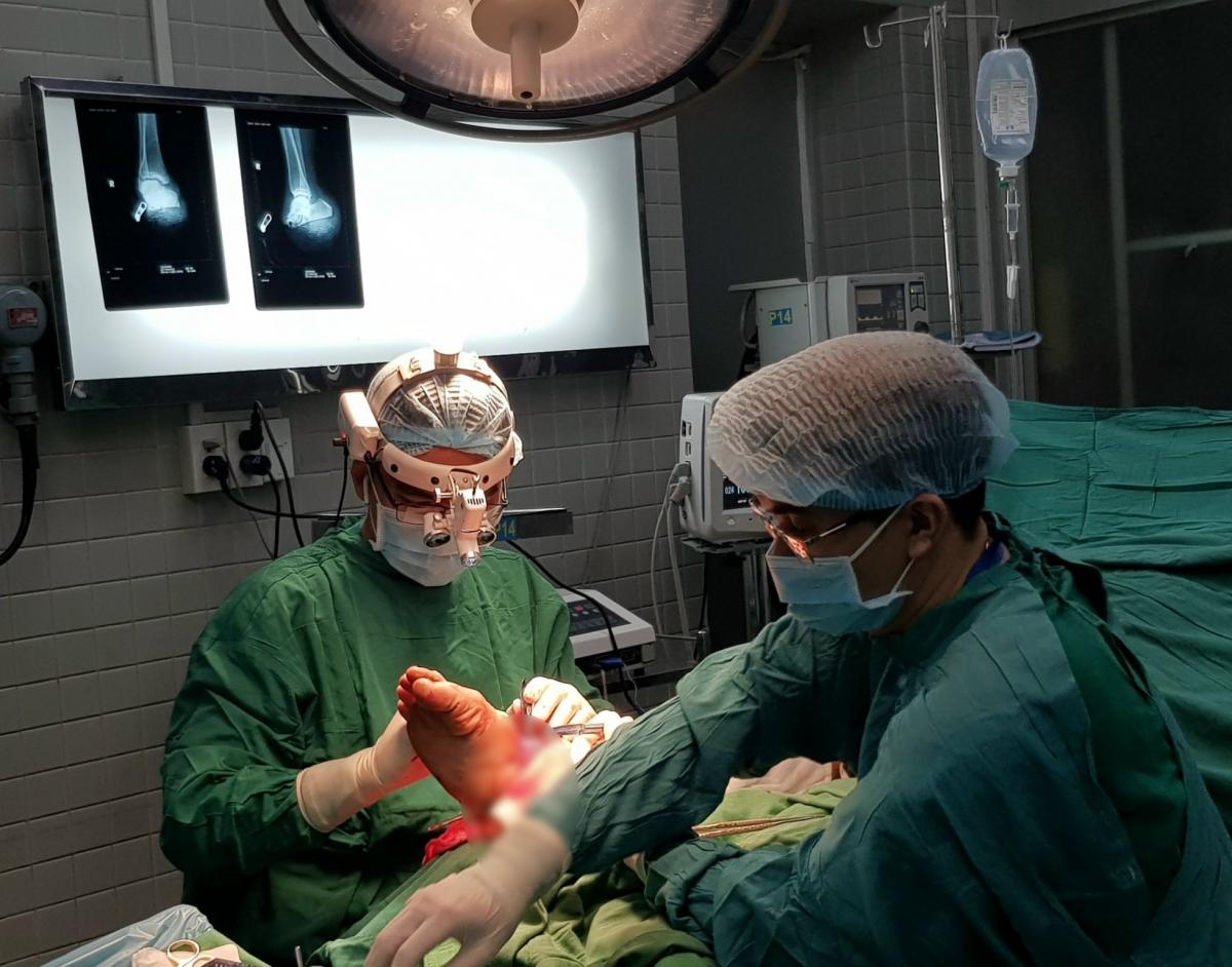 Các bác sĩ mất 6 giờ để nối lại chi đã đứt rời cổ chân cho bệnh nhân (Ảnh bệnh viện cung cấp)