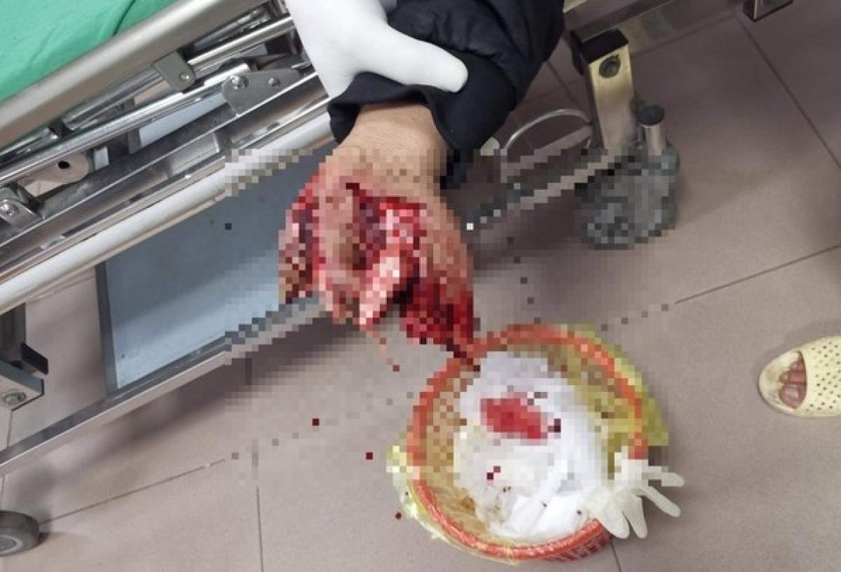 Trước đó một vụ việc tương tự xảy ra tại TP Vinh cũng khiến 1 em dập nát bàn tay.
