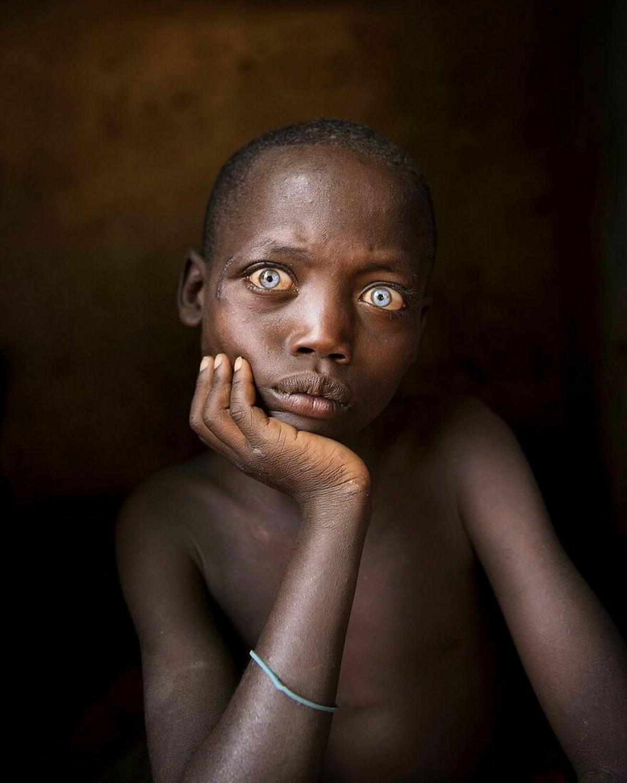 Gương mặt suy tư của một cậu bé ở Ethiopia.