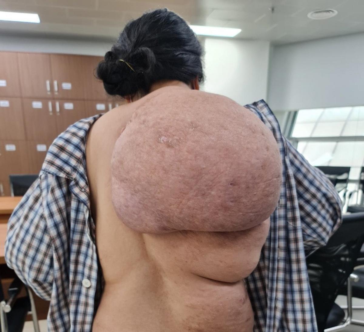 Khối u khổng lồ từ bả vai đến xuống thắt lưng và mông phải của bệnh nhân. (Ảnh: BVCC)