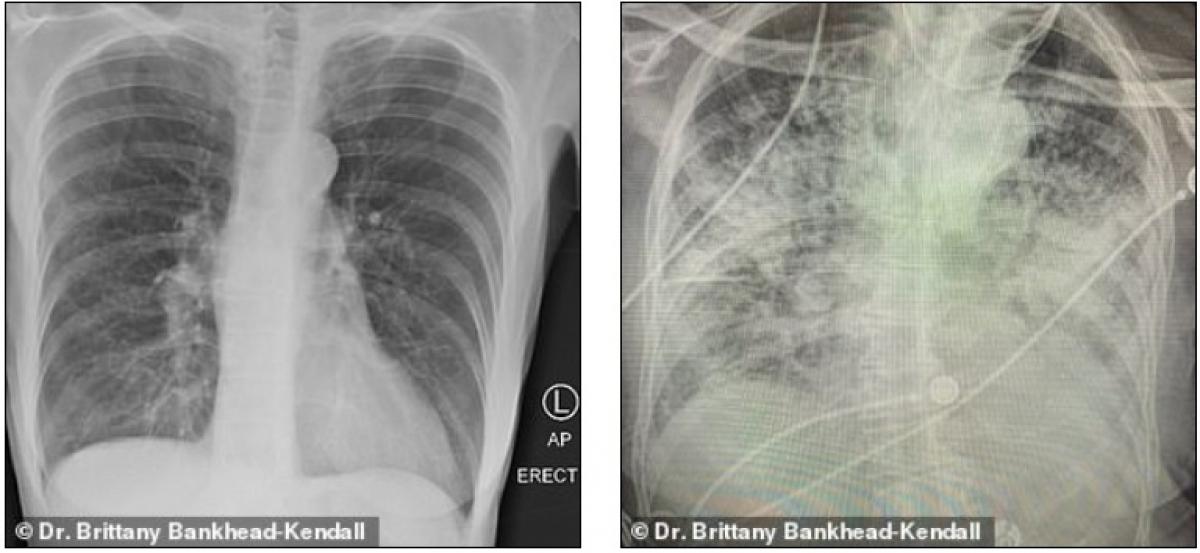 Phổi người hút thuốc (bên trái) và phổi bệnh nhân Covid-19 (bên phải). Ảnh: Bác sĩ Kendall.