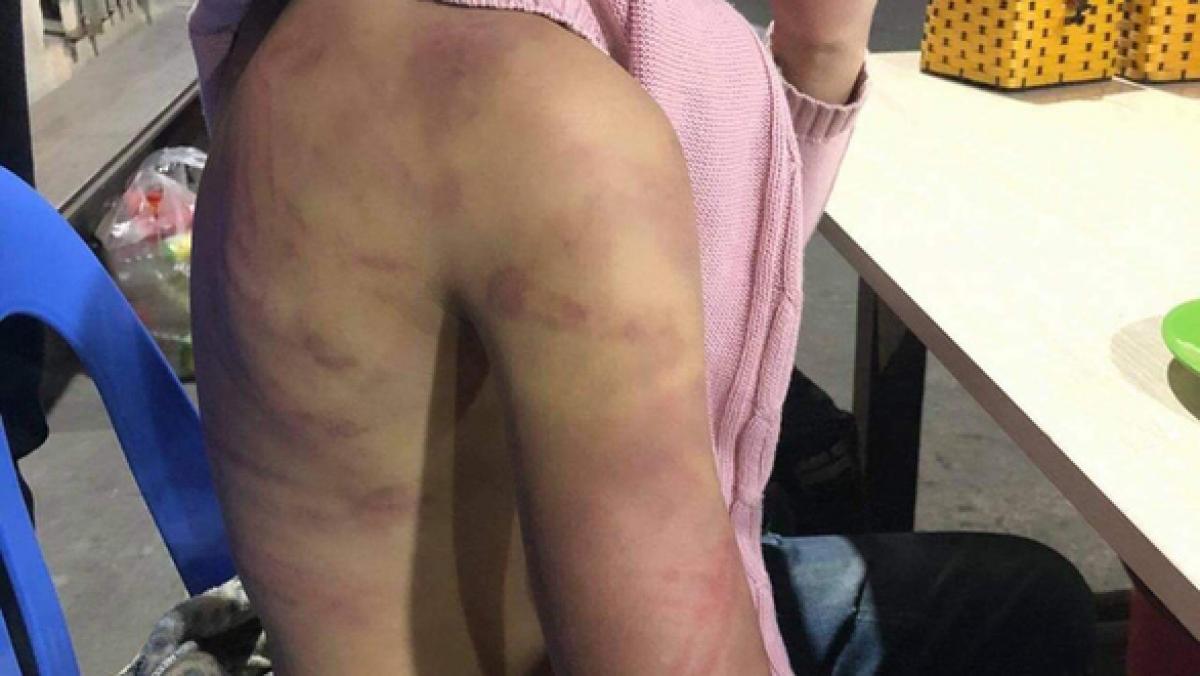 Cháu B. kể, những vết bầm tím trong trận đòn gần nhất do mẹ ruột gây ra vào giữa tháng 1/2021