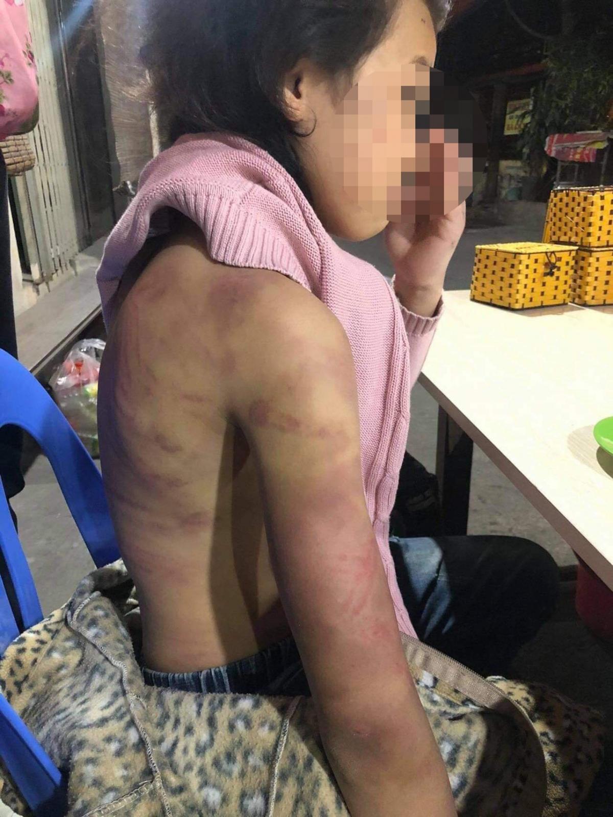 Toàn thân bé gái bị đánh đập tím tái. Ảnh người nhà cung cấp.