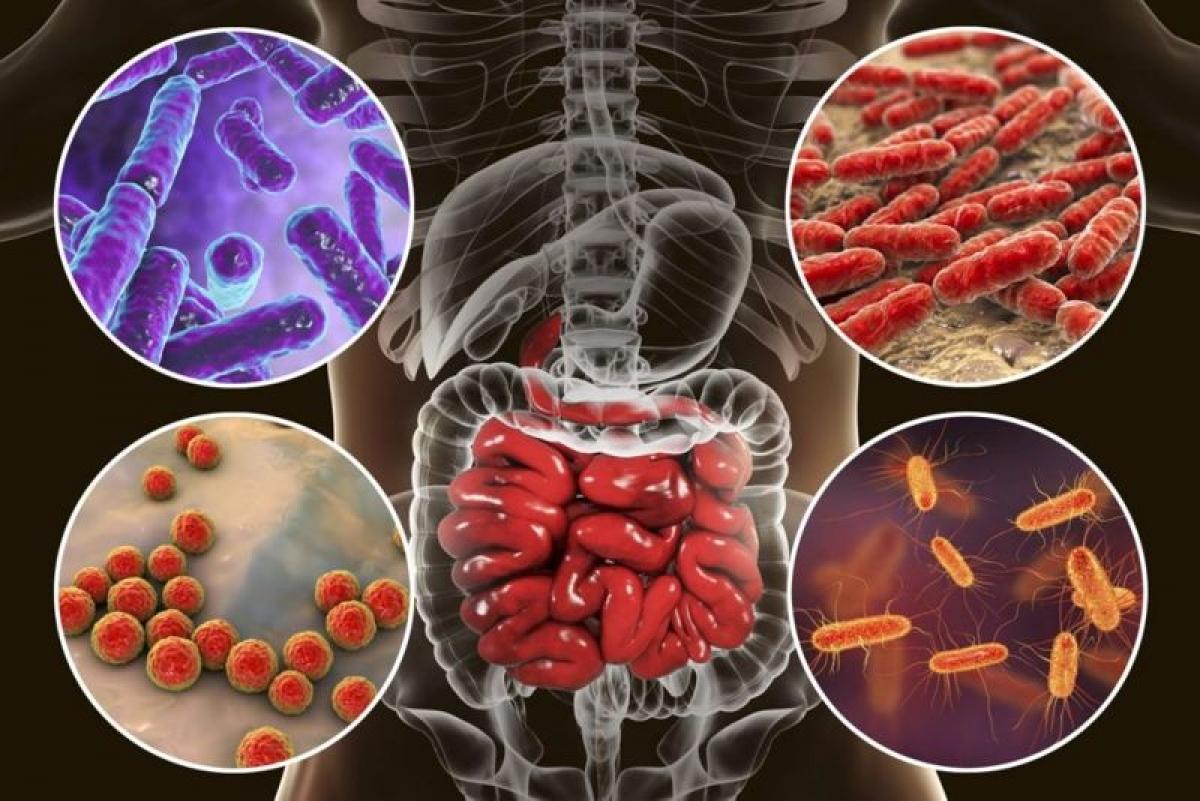 Rối loạn hệ khuẩn ruột: Tình trạng rối loạn hệ vi sinh đường ruột có thể kích thích các quá trình trao đổi chất gây béo phì. Những người thừa cân thường có mật độ vi khuẩn ruột thấp hơn và với tỉ lệ vi sinh khác biệt so với người có cân nặng bình thường.