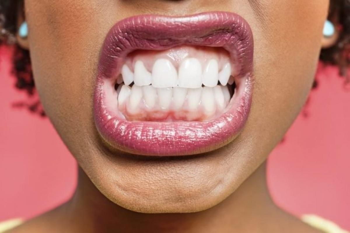 Nghiến răng: Bạn cũng có thể chặn cơn ngáp bằng việc nghiến răng. Tuy nhiên, cảm giác này khó chịu y như việc hắt hơi hụt. Do đó, cách này chỉ có tác dụng ngăn cơn ngáp tạm thời và sau đó bạn sẽ phải chịu khuất phục trước nhu cầu sinh lý này của cơ thể.