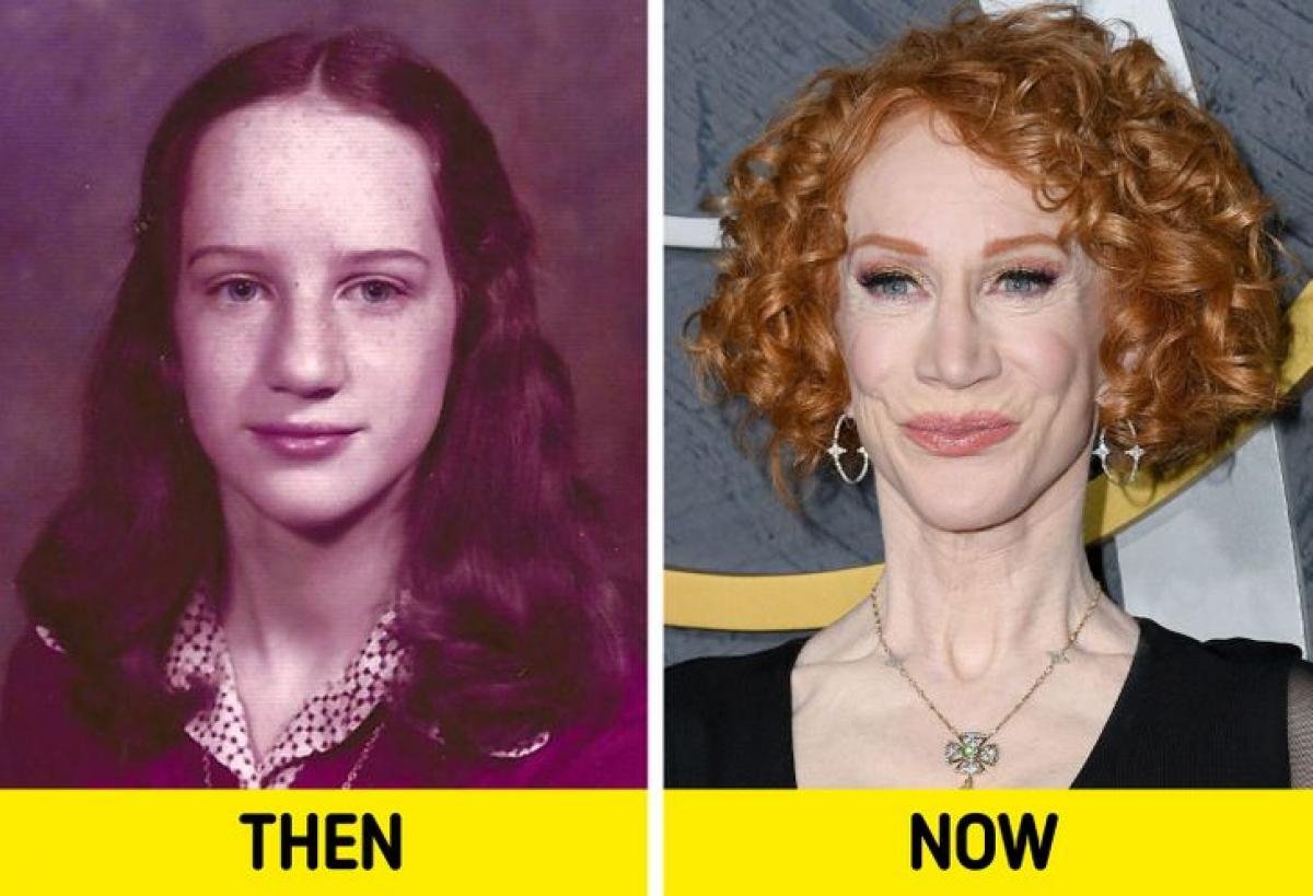 Gương mặt dài đặc trưng của nữ diễn viênKathy Griffin từ trẻ đến khi ở tuổi trung niên.