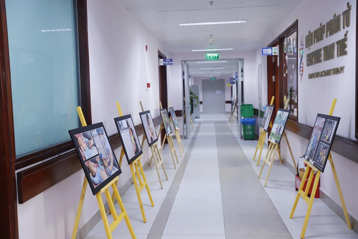 """Sự kiện triển lãm ảnh """"Bệnh hiếm trong mắt tôi"""" diễn ra tại khoa Nội tiết – Chuyển hóa – Di truyền, Bệnh viện Nhi Trung ương."""