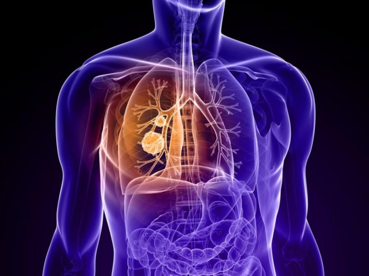 Ung thư phổi: Các chuyên gia đã chỉ ra mối liên hệ chặt chẽ giữa việc tiếp xúc với các khí NOx từ khói bụi phương tiện giao thông với bệnh ung thư phổi.
