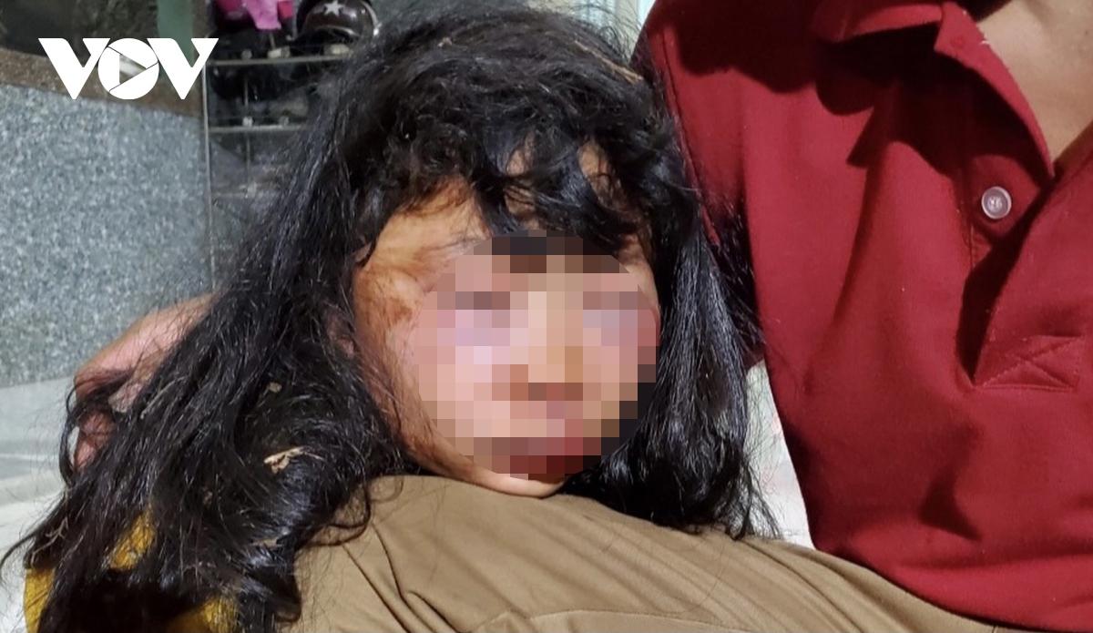 Nữ sinh lớp 6 bị người đàn ông lạ mặt đánh dã man trong lô cao su.