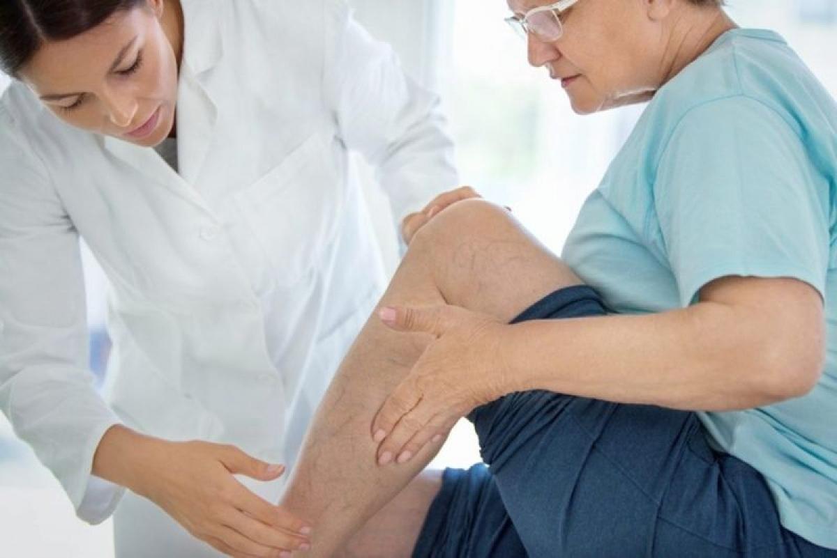 Yếu cơ chân hoặc hông: Thoái hóa đốt sống có thể gây tổn thương dây thần kinh. Điều này không chỉ có thể gây yếu cơ ở vùng chân hoặc hông mà còn có thể gây tình trạng rũ chân - sự mất khả năng nâng nửa trước của bàn chân khỏi mặt đất.