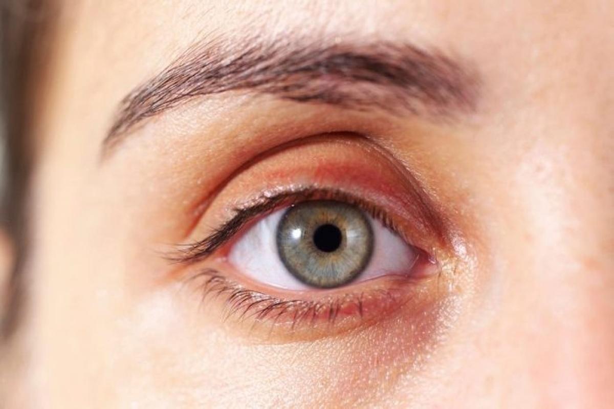 Các chấm vàng, mềm trên mí mắt: Các ban vàng mí mắt chứa đầy cholesterol này cho thấy bạn có nguy cơ mắc các bệnh tim mạch cao hơn.