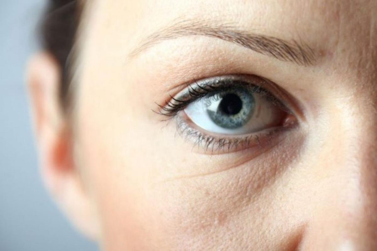 Bọng mắt và quầng thâm: Những đôi mắt lờ đờ, mệt mỏi có thể là dấu hiệu của các chứng dị ứng mãn tính. Các bệnh lý này khiến các mạch máu nở rộng và vỡ ra, gây sưng phù và thâm quầng vùng da nhạy cảm dưới mắt. Bệnh suy giáp và chứng ngưng thở khi ngủ cũng có thể là thủ phạm gây ra tình trạng này.