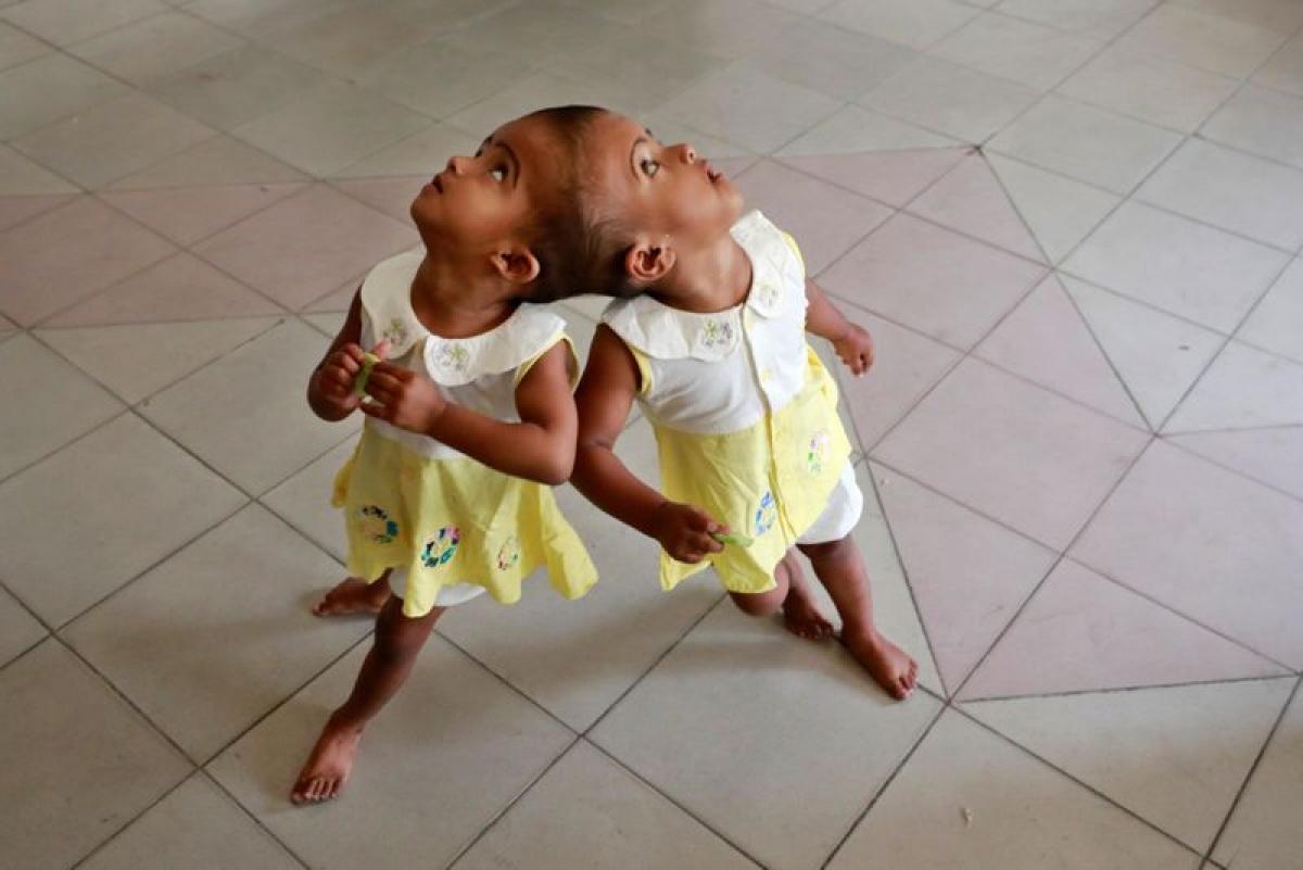 Sinh đôi dính liền: Khi một hợp tử không thể phân đôi hoàn toàn, cặp sinh đôi sẽ bị dính liền nhau. Hai thai nhi có thể dính liền nhau ở phần ngực, gốc cột sống, cột sống, vùng chậu, đầu, hoặc đầu và ngực.