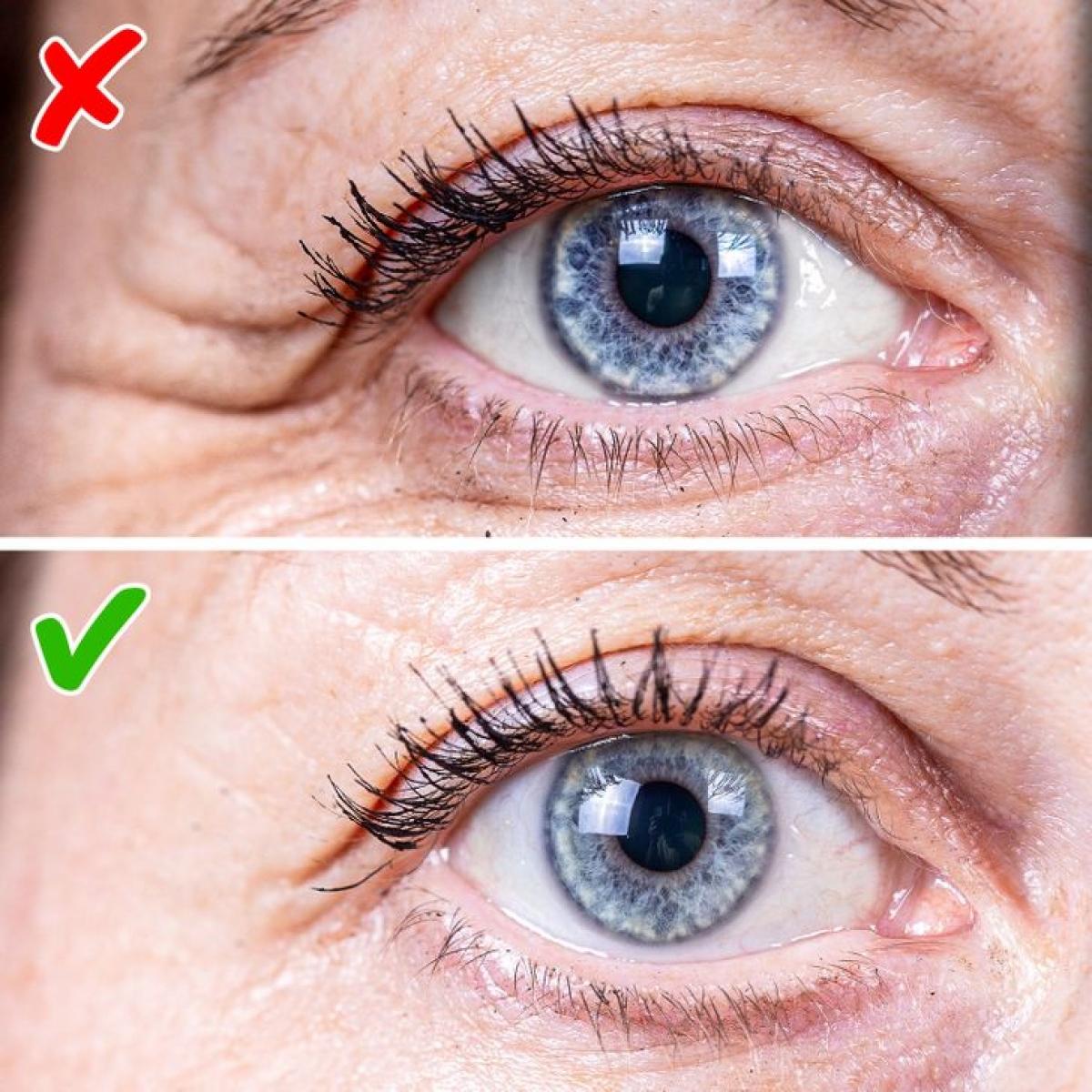Nếu bạn thức dậy với những nếp nhăn khó chịu trên khuôn mặt, thì chiếc gối có thể là nguyên nhân. Vết gấp vải có thể in hằn lên da và để lại nếp nhăn. Dù những vết hằn này sẽ dần biến mất sau đó, nhưng tổn thương lặp đi lặp có thể tạo thành nếp nhăn vĩnh viễn.
