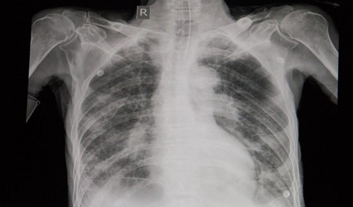 Nhiễm khuẩn thứ phát: Virus cúm có thể nguy hiểm chết người khi nó kích thích một bệnh khác, ví dụ như viêm phổi, viêm cơ tim, viêm não hay nhiễm trùng hệ thống. Đây là những phản ứng của cơ thể đối với nhiễm khuẩn thứ phát, dẫn đến viêm các nội tạng và có thể gây tử vong.