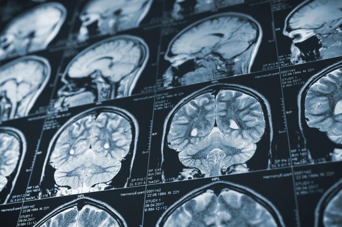 Bệnh Alzheimer và các chứng suy giảm trí nhớ khác: Mặc dù không trực tiếp gây tử vong, nhưng bệnh Alzheimer cũng là một trong những nhân tố làm giảm tuổi thọ hoặc gây các biến chứng nguy hiểm. Khi bệnh trở nặng, người bệnh sẽ gặp khó khăn trong việc kiểm soát các vận động như đi lại hay nuốt thức ăn.