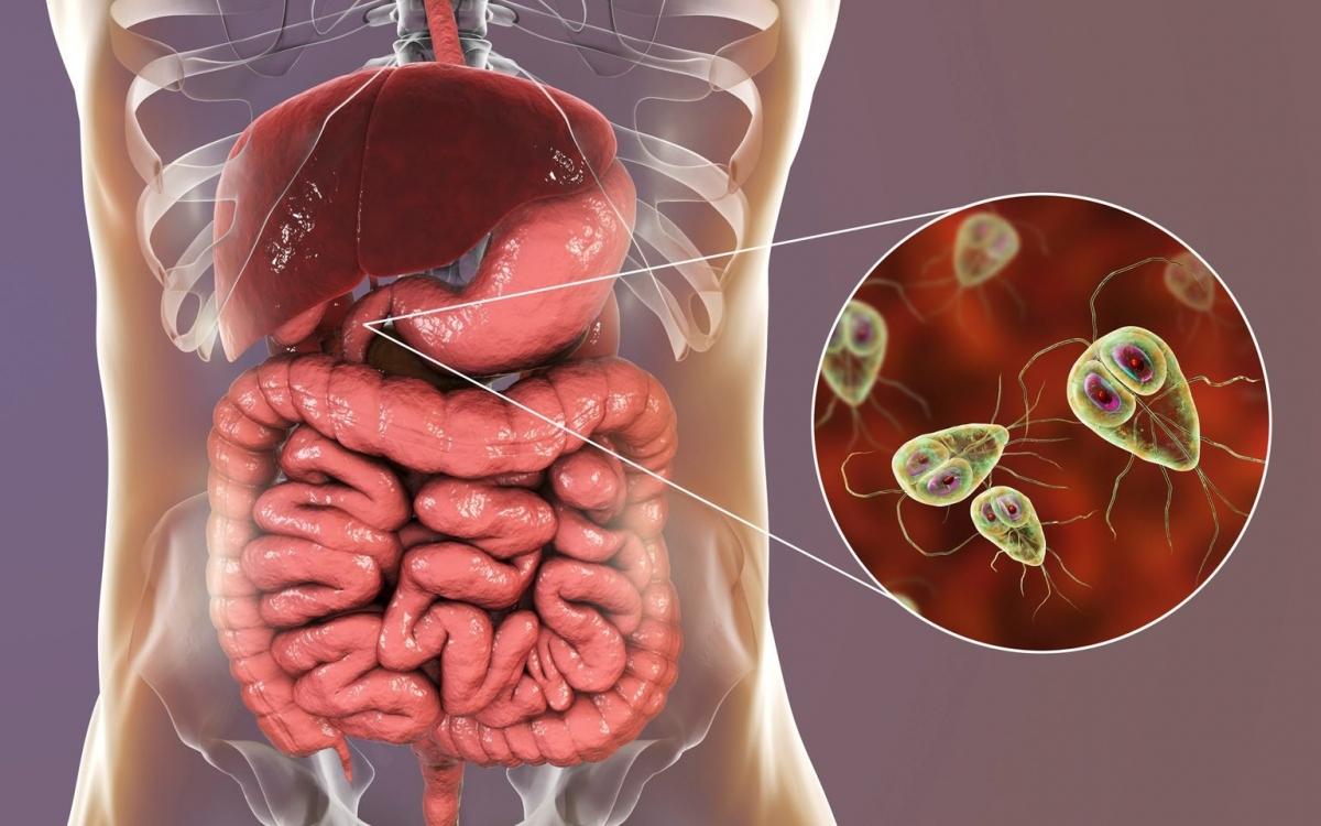 Ký sinh trùng là gì? Ký sinh trùng là một sinh vật sống nhờ vào hoặc sống trong cơ thể vật chủ, lấy dinh dưỡng từ cơ thể vật chủ. Có ba loại ký sinh trùng: động vật nguyên sinh - những sinh vật đơn bào thường ký sinh trong ruột, mô hoặc máu; Các loại giun sán và các vật ký sinh ngoài như ve, bọ chét, chấy hay ghẻ.