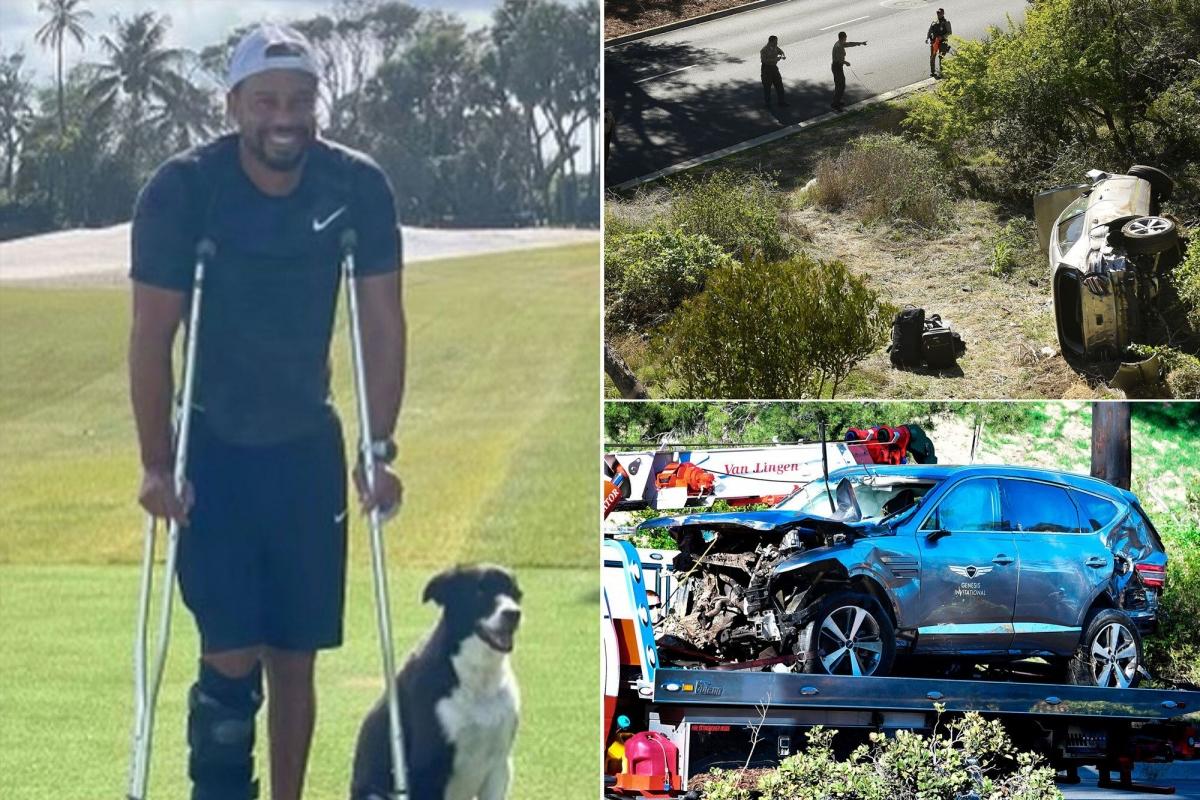 Tiger Woods lần đầu xuất hiện sau vụ tai nạn kinh hoàng. (Ảnh: NYPost)