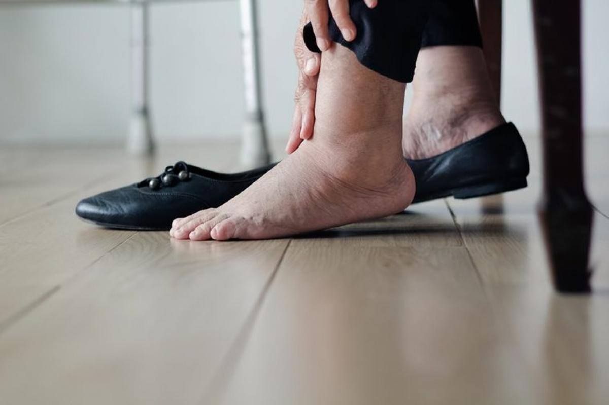 Cẳng chân và bàn chân sưng phù: Cẳng chân và bàn chân sưng phù cũng có thể là dấu hiệu của các vấn đề về tim mạch. Khi tim không thể bơm máu hiệu quả, các mạch máu sẽ co lại, đẩy các dịch thể thừa vào các mô, dẫn đến tình trạng sưng phù do tích nước ở bàn chân, cẳng chân và bụng.