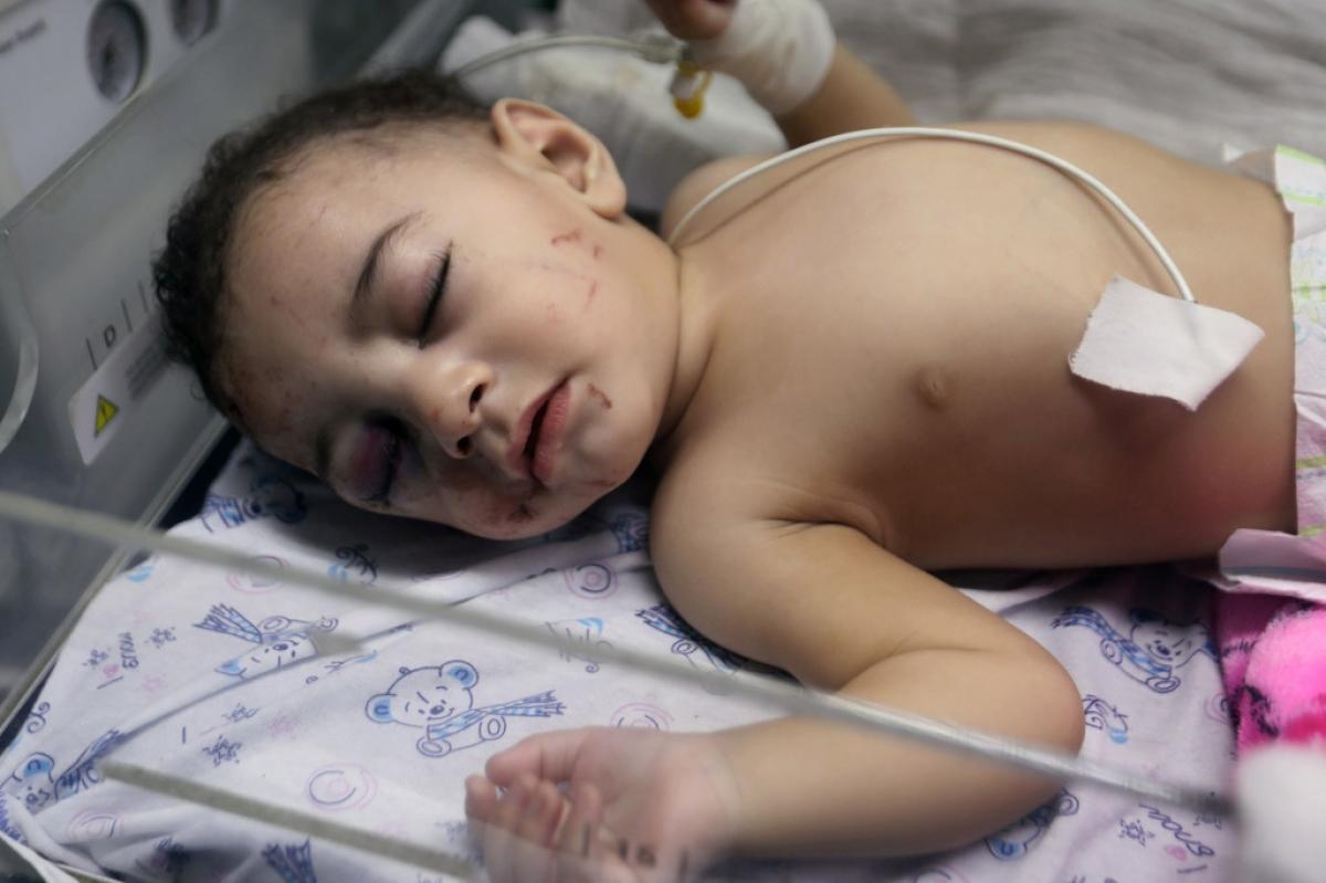 Hình ảnh em bé Omar đang được điều trị tại bệnh viện. Ảnh: ZUMAPRESS.com