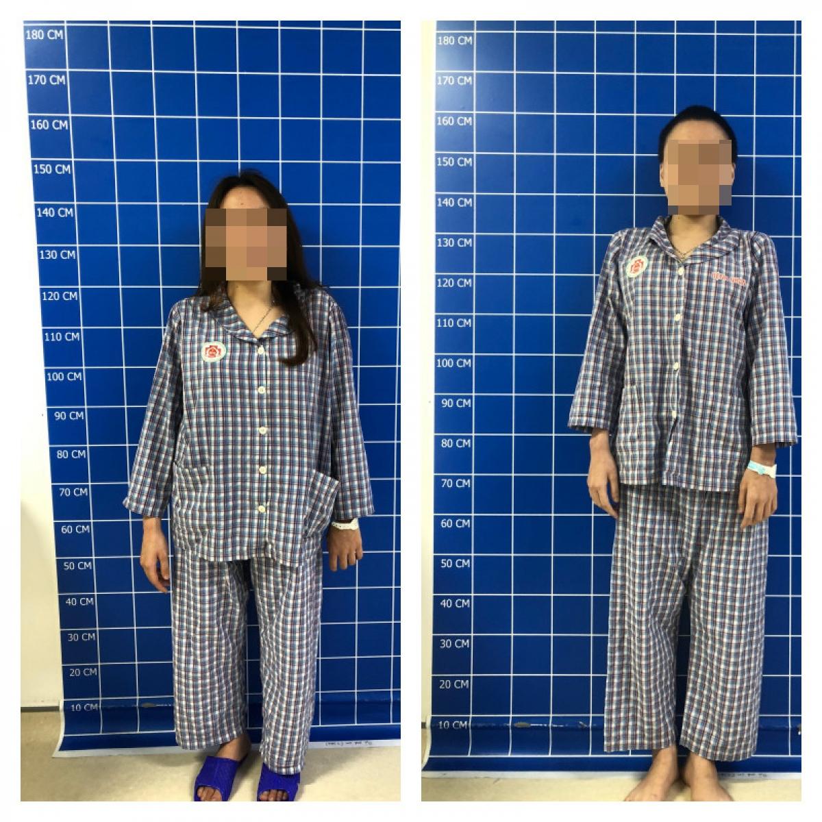 Bệnh nhân H. trước và sau phẫu thuật. (Ảnh: BVCC)
