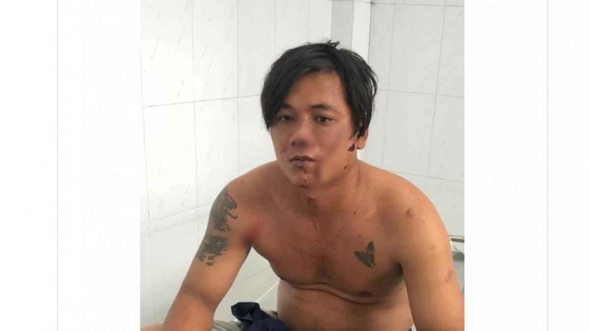Nghi phạm Hà Văn Cường bị trọng thương sau vụ xô xát