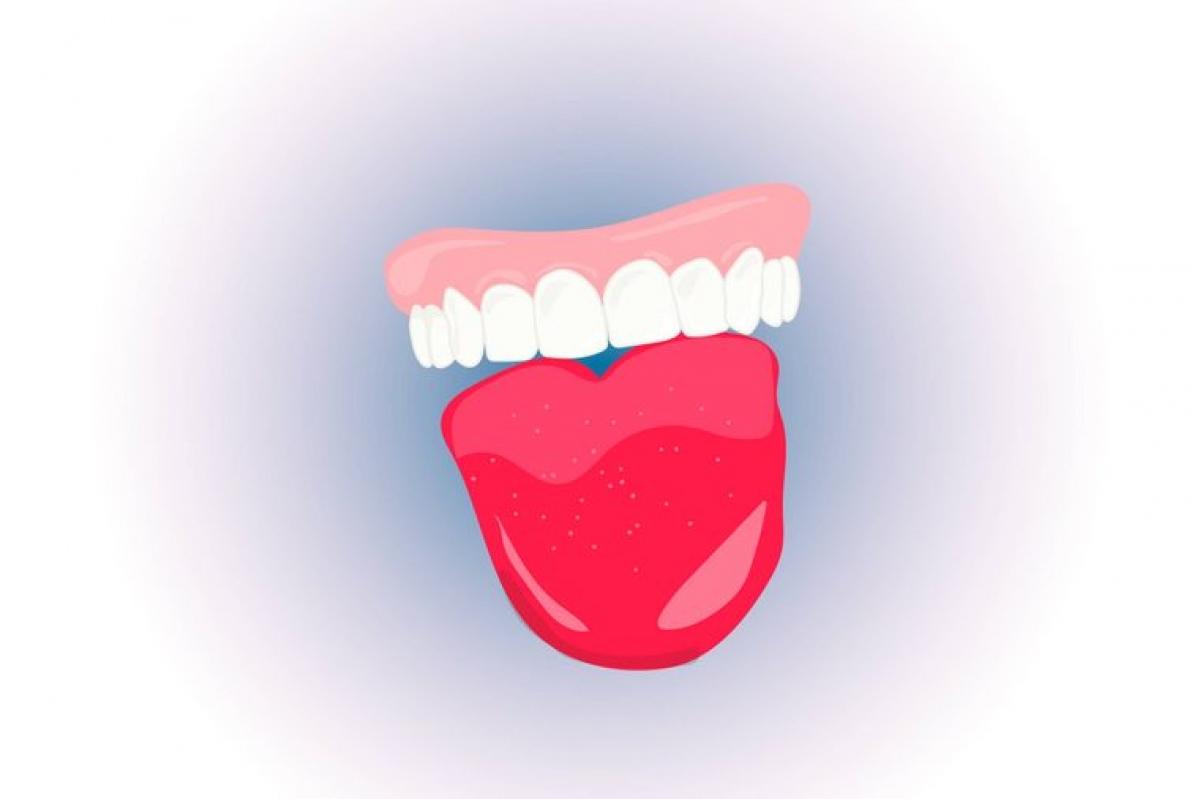 Có thể là dấu hiệu của chứng viêm: Thiếu một số dưỡng chất có thể dẫn đến viêm nướu hoặc lưỡi, và việc nhai đá có thể làm dịu cảm giác khó chịu, nhưng lại gây tác dụng phụ. Tác dụng giảm đau của đá lạnh rất ngắn, do đó bạn nên tìm ra nguyên nhân gốc rễ của chứng viêm và gặp nha sĩ để được điều trị triệt để./.