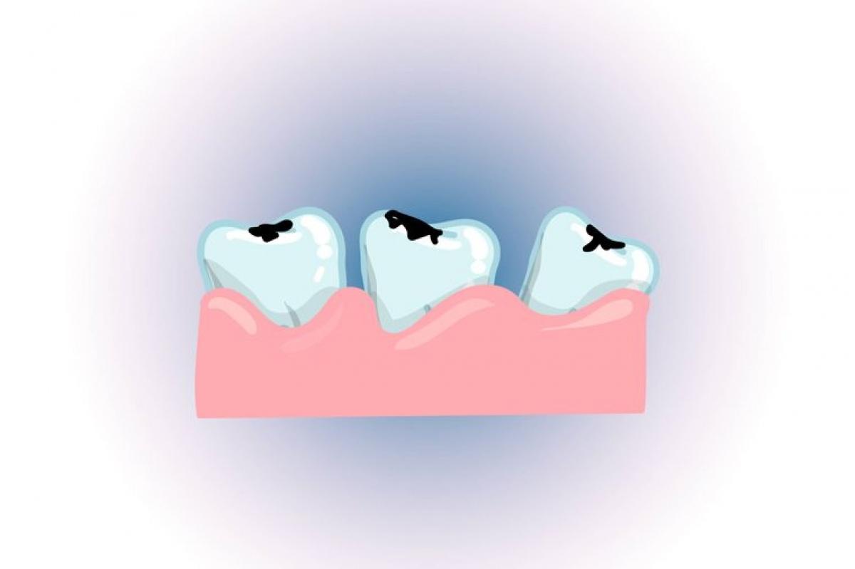 Khiến răng nhạy cảm: Nhai đá lạnh còn khiến răng bị nứt mẻ, gây sâu răng và sưng đau cơ hàm. Chuyên gia cũng cảnh báo rằng nhai đá lạnh có thể khiến răng trở nên cực kỳ nhạy cảm, ê buốt khi ăn đồ nóng hoặc đồ lạnh.