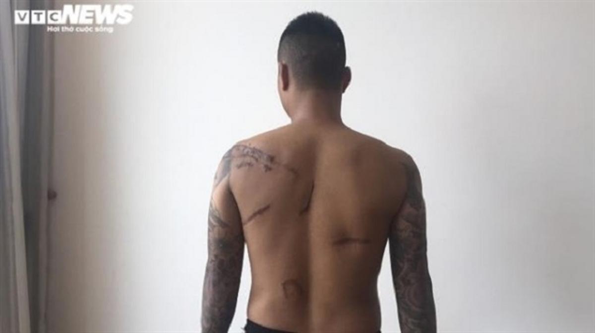 Anh Nguyễn Cơ Thạch bị nhóm côn đồ truy sát lúc nửa đêm cách đây gần 10 năm, gây tổn hại 47% sức khỏe.