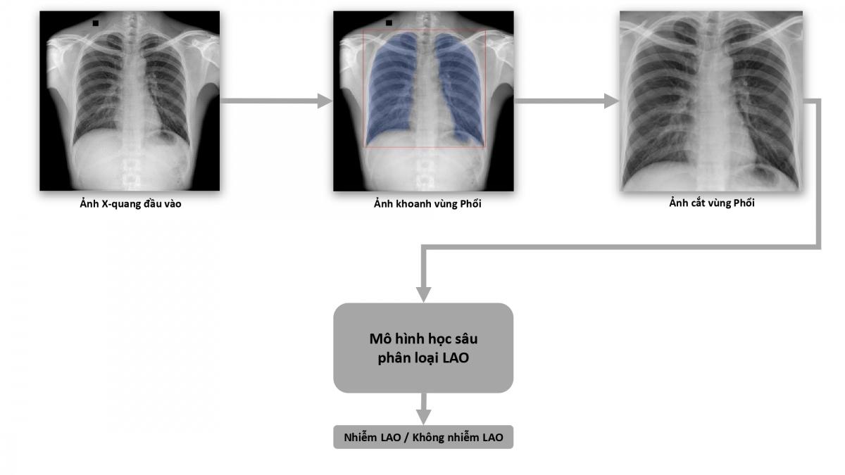 Quy trình dạy máy phân loại bệnh Lao.