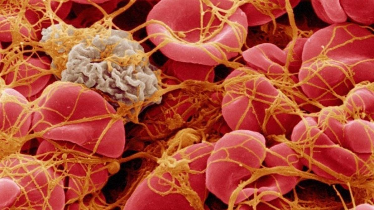 Hình ảnh qua kính hiển vi điện tử của tế bào máu đông dưới lưới fibrin. Nguồn: David Gregory & Debbie Marshall