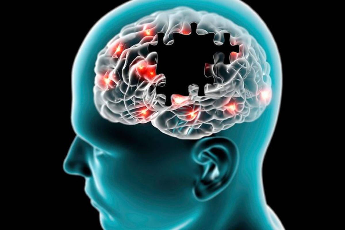 Nguy cơ suy giảm chức năng thần kinh và mất trí nhớ: Những người thuộc nhóm máu AB có nguy cơ suy giảm chức năng thần kinh khi về già cao hơn các nhóm máu còn lại 82%. Tuy nhiên, nhóm máu không phải là yếu tố rủi ro quan trọng nhất của chứng suy giảm thần kinh tuổi già.