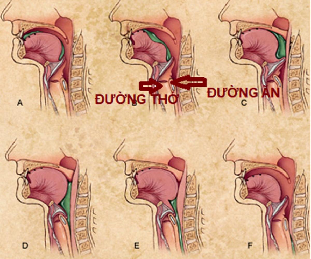 Rối loạn nuốt ảnh hưởng tới các bệnh lý hô hấp mạn.
