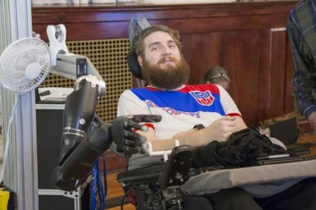 Nathan Copeland điều khiển một cánh tay robot nhờ các điện cực được cấy vào não.