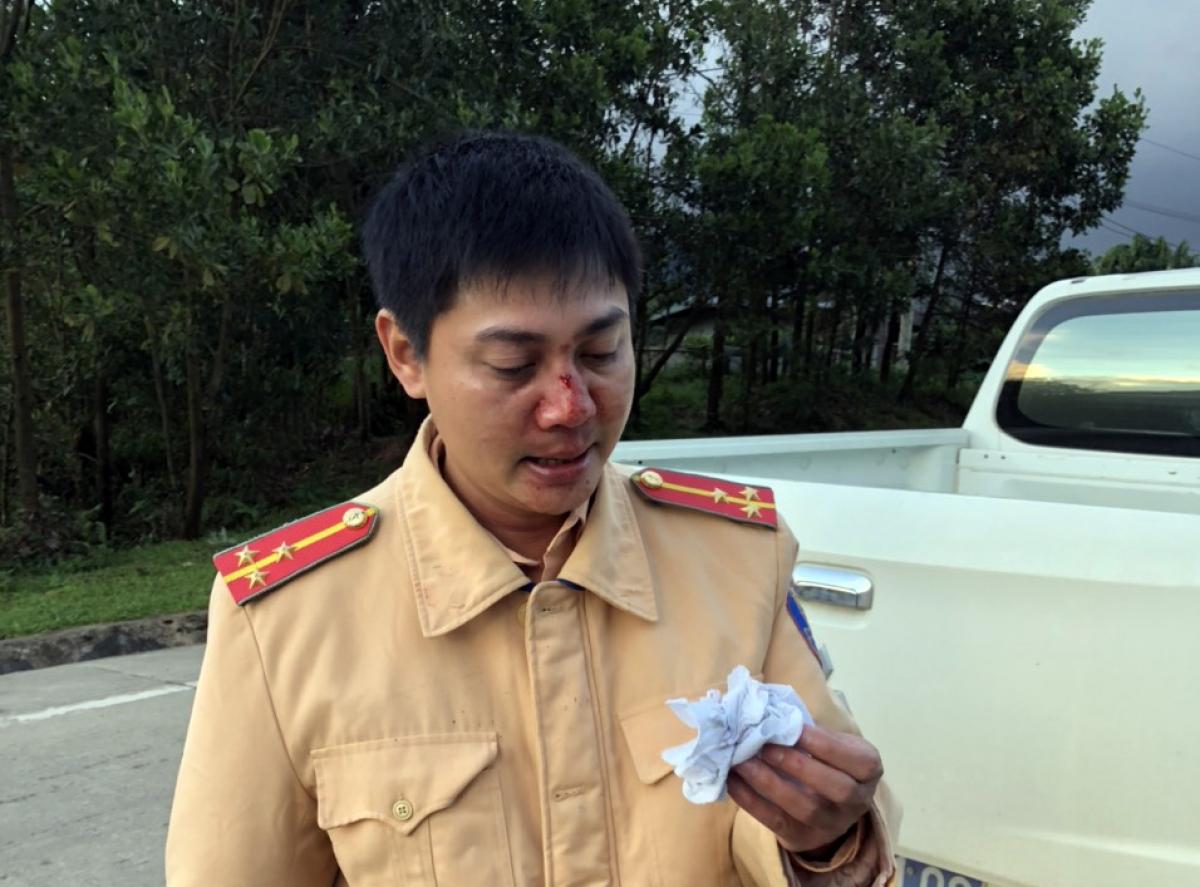 Đại úy Bùi Quang Nghĩa bị thương ở sống mũi.