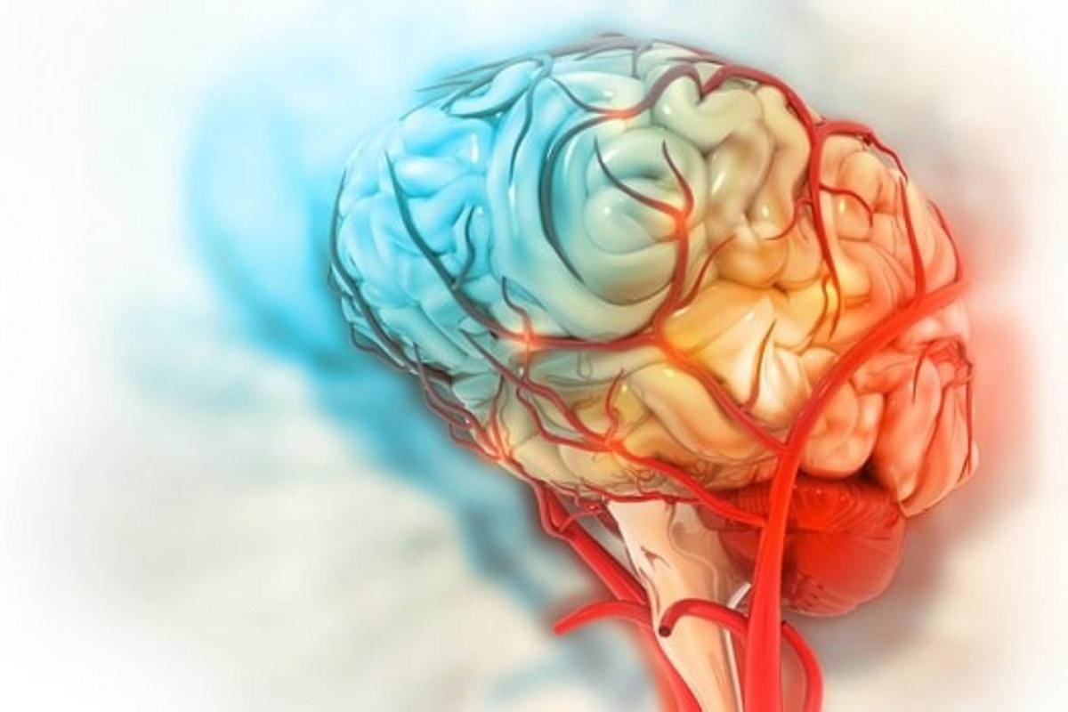 COVID-19 có thể gây tổn thương não.