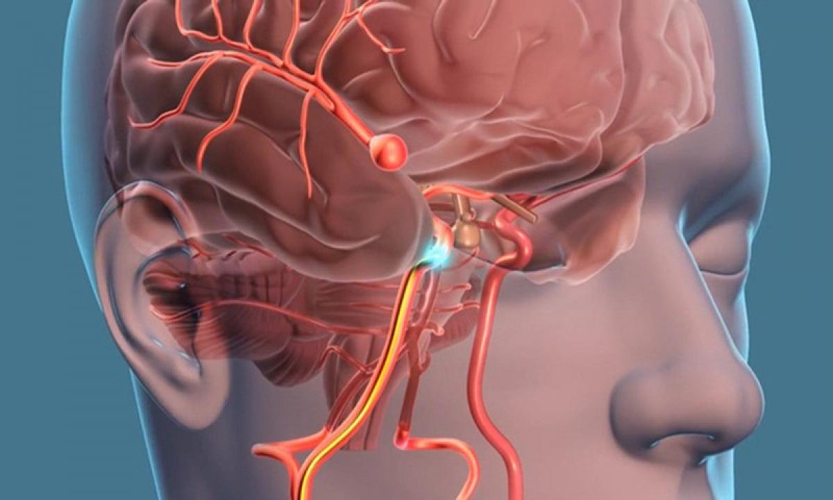 Vỡ phình mạch não và vỡ búi thông động – tĩnh mạch não chiếm tỷ lệ cao nhất trong các nguyên nhân gây đột quỵ não ở người trẻ.