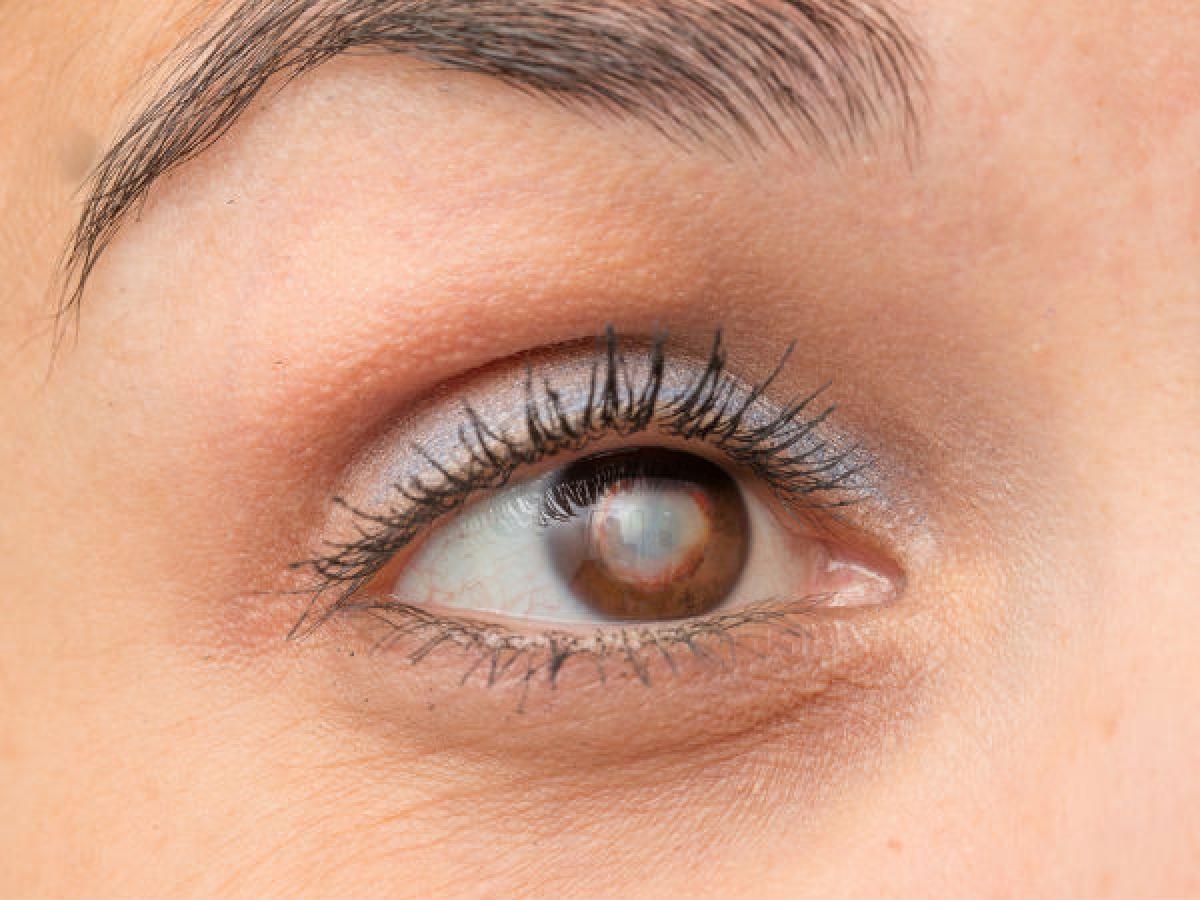 Đục thủy tinh thể: Đục thủy tinh thể là bệnh lý khi các thấu kính của mắt trở nên mở đục theo thời gian, dẫn đến suy giảm thị lực. Nghiên cứu đã chỉ ra mối liên hệ giữa việc hút thuốc lá và đục thủy tinh thể, khẳng định rằng hút thuốc lá làm tăng nguy cơ đục thủy tinh thể.