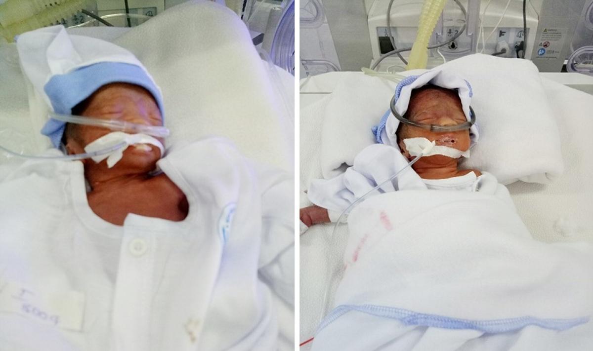 Hai bé gái đã được sinh kịp thời an toàn