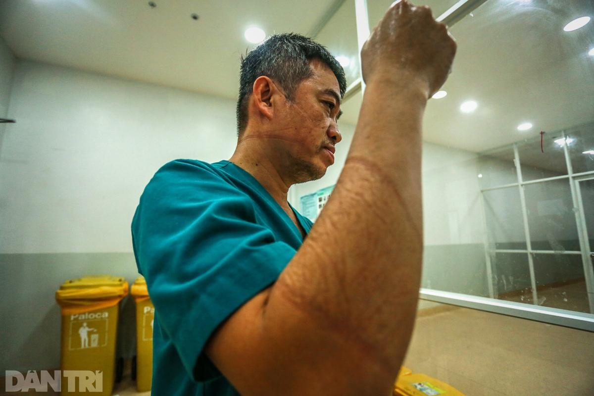 Những vết hằn cắt trên mặt, trên tay của bác sĩ Linh lộ ra khi cởi bỏ lớp đồ bảo hộ sau nhiều giờ làm việc liên tục.