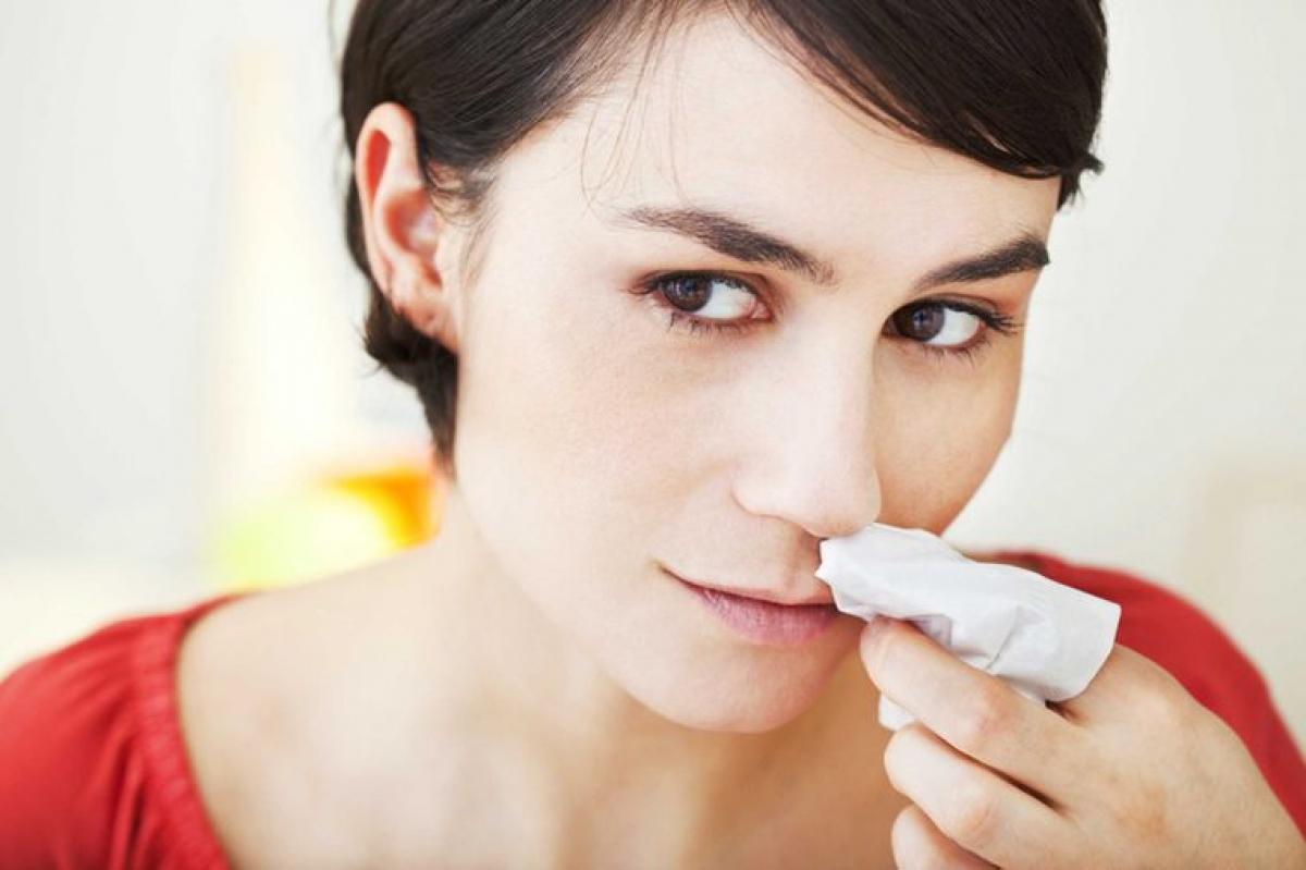 Cách sơ cứu khi bị chảy máu mũi: Một sai lầm cực kỳ phổ biến khi sơ cứu trong trường hợp chảy máu mũi là ngửa đầu ra sau - cách này có thể gây nuốt máu mũi và thậm chí gây nghẹn, sặc. Thay vì ngửa đầu ra sau, bạn hãy dùng ngón tay bóp nhẹ đầu mũi và ngồi thẳng. Nếu các bước sơ cứu này không làm tình trạng chảy máu mũi dừng hoặc giảm, hãy đến cơ sở y tế gần nhất để được cấp cứu./.